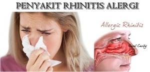 Pantangan Makanan Bagi Penderita Rhinitis